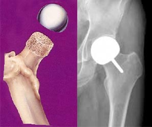 Half resurfacing arthroplasty of the hip